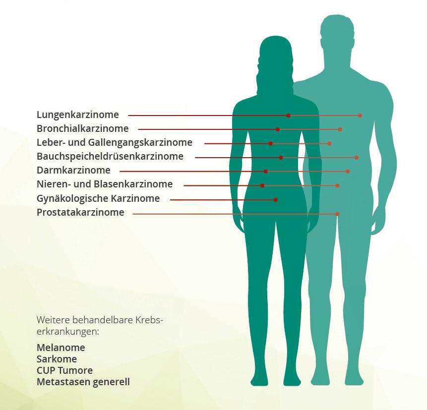 Komplementäre Krebsintensivtherapie